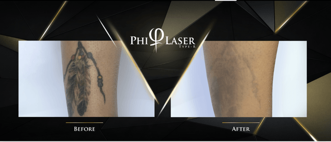 PhiLaser Tattoo Removal Training
